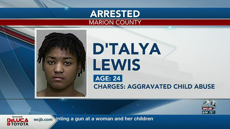 Ocala mother arrested for hitting her toddler 30 times with a belt, causing brain injury